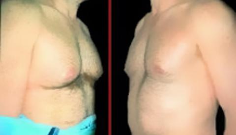 У мужчин XXI века начала расти грудь (В США в течение прошлого года количес